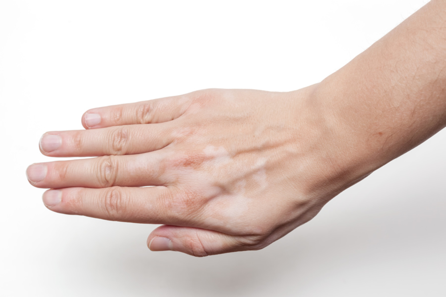 ¿Por qué salen manchas blancas en la piel?