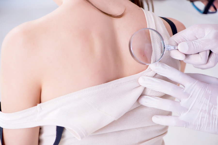 Protección solar y autoexploración, claves para prevenir el melanoma